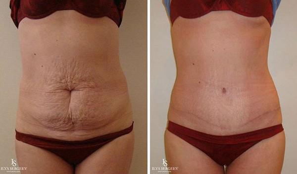 худая живот жир